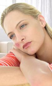 Imagen du lupus