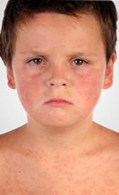 Sympt mes de la rougeole - Symptome coup de chaleur bebe ...