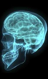 L'image de tumeur cérébrale